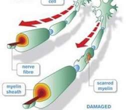 Синдром гієна-барре фото