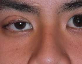 Синдром горнера фото