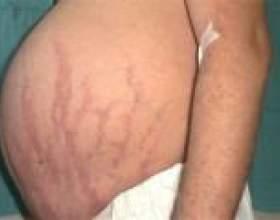 Синдром іценко-кушинга (гиперкортицизм) - причини, лікування фото