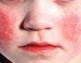 Синдром кавасакі у дітей: причини, діагностика, лікування фото
