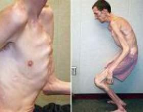 Синдром марфана - причини, симптоми, лікування фото