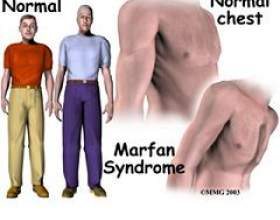 Синдром марфана фото