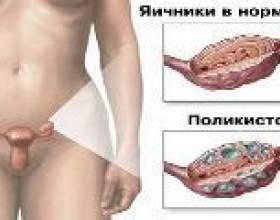 Синдром полікістозних яєчників, симптоми, лікування фото