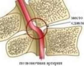 """Синдром хребетної артерії при шийному остеохондрозі С""""РѕС'Рѕ"""