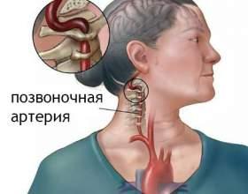 Синдром хребетної артерії при шийному остеохондрозі: симптоми, профілактика фото
