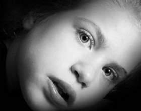 Синдром ретта фото