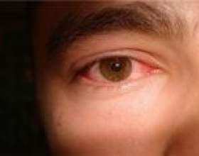 Синдром сухого ока - причини, симптоми, лікування фото