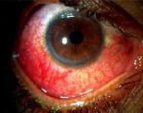 Синдром жильбера - причини, симптоми, лікування фото