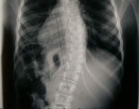 Сколіоз хребта у дорослих: діагностика, профілактика, лікування фото