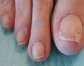 Шаруються нігті - причини і лікування фото