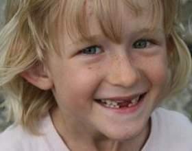 Зміна зубів у дітей фото