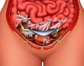 Спайки після кесаревого розтину: симптоми фото