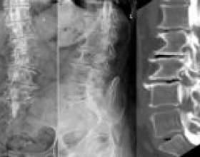 Спондилоартроз поперекового відділу хребта фото