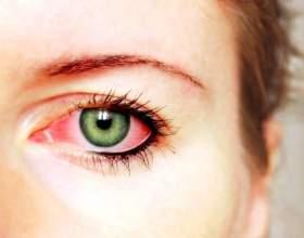 Способи лікування коньюктивита очей фото
