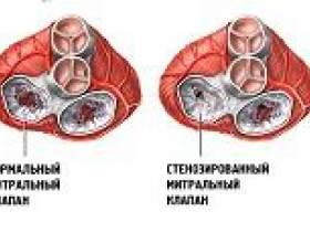 Стеноз мітрального клапана: причини, симптоми, лікування фото
