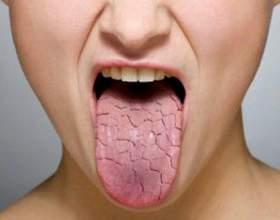 Сухість у роті - причини якої хвороби фото