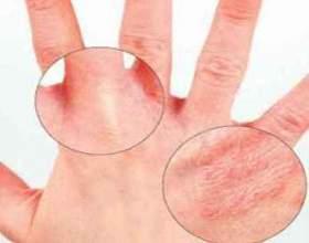Чи існують народні методи лікування алергічного дерматиту? фото