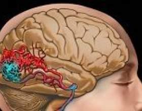 Звуження судин головного мозку, причини, лікування фото