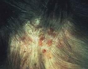 Висипний тиф, симптоми, причини і лікування фото