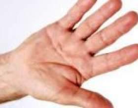 Тремор рук. Чому трясуться руки? фото