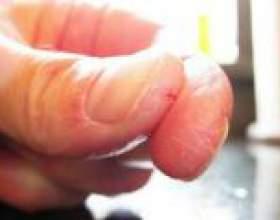 Тріскається шкіра на руках - причини, лікування фото