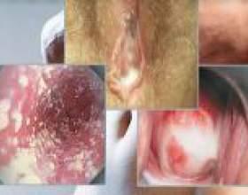 Трихомонадний кольпіт - причини, симптоми, лікування фото