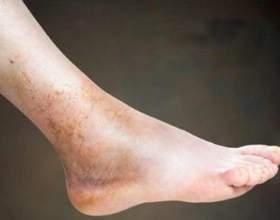 Тромбофлебіт глибоких вен нижніх кінцівок: симптоми, лікування фото