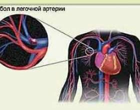 Тромбоемболія легеневої артерії (тела) фото