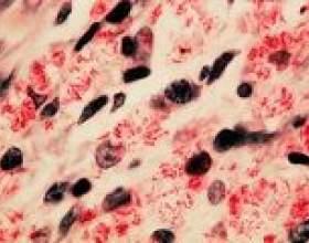 Туберкульоз кишечника: причини, симптоми, лікування фото