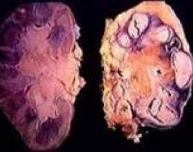 Туберкульоз нирок: причини, симптоми, лікування фото