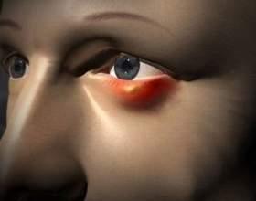 У мене часто буває ячмінь на оці. Які існують ефективні способи його лікування і профілактики? фото
