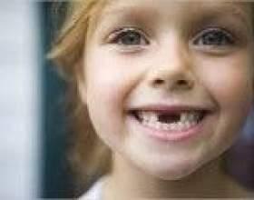 У дитини не випадають молочні зуби - причини фото