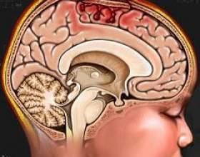 Забій головного мозку фото