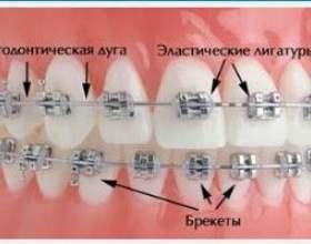 Установка брекетів - вірний шлях до променистою усмішкою фото