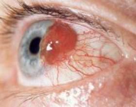 Увеальна меланома або рак очі: як визначити і лікувати фото