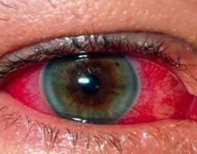 Увеїт - причини, симптоми, лікування, передній, хронічний, периферичний увеїт фото