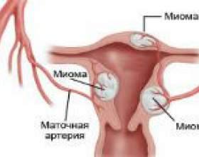 Вузлова міома матки - причини, симптоми, лікування фото