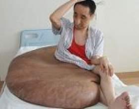 В китаї була видалена 110-кілограмова родимка фото