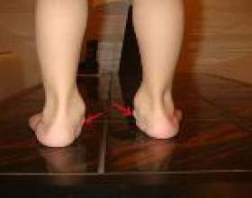 Вальгусная плоскостопості у дітей: причини і лікування фото