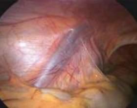 Варикоцеле - причини, симптоми, відгуки фото