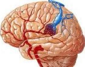 Венозна ангіома мозку (мозочка, лобової частки) фото