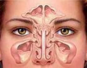Верхньощелепної синусит: гострий і хронічний фото