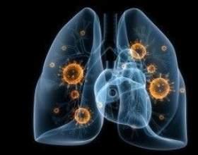 Вірусна пневмонія - причини, симптоми, діагностика та лікування фото
