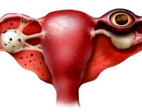 Позаматкова вагітність, ознаки на ранніх термінах фото
