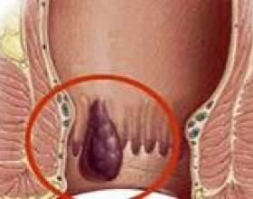 Внутрішній геморой: причини, симптоми і лікування фото