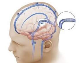 Внутрішньочерепна гіпертензія фото