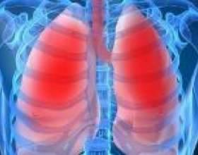 Запалення легенів у дорослих: симптоми, лікування фото