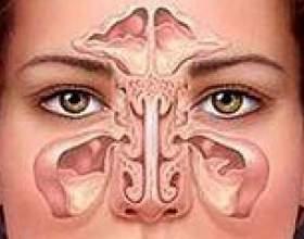 Запалення носових пазух, симптоми і лікування фото