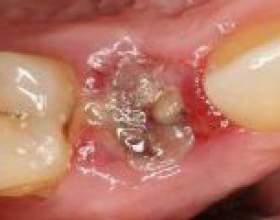 Запалення після видалення зуба, лікування, антибіотики фото