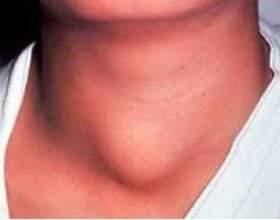 Запалення щитовидної залози (тиреоїдит): симптоми і лікування фото